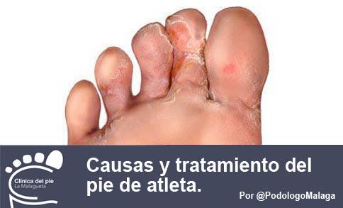 La uña negra sobre el pulgar del pie el tratamiento del hongo de las uñas