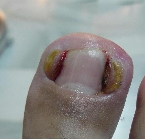 Si había un hongo sobre las uñas