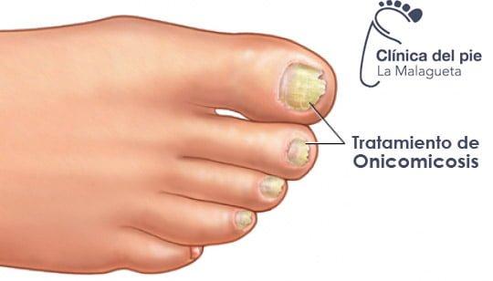 El hongo de las uñas y los pies en los pies el tratamiento