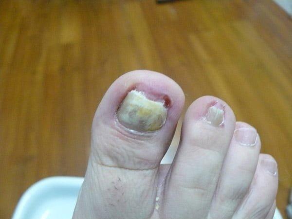 Sanar la psoriasis y el hongo de las uñas
