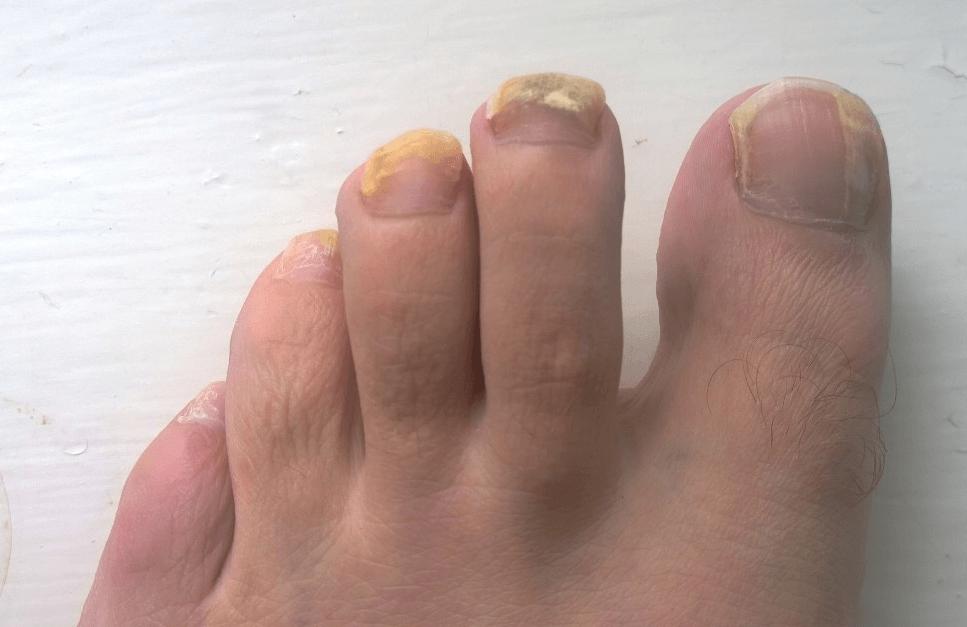 El ungüento medicinal contra el hongo de las uñas