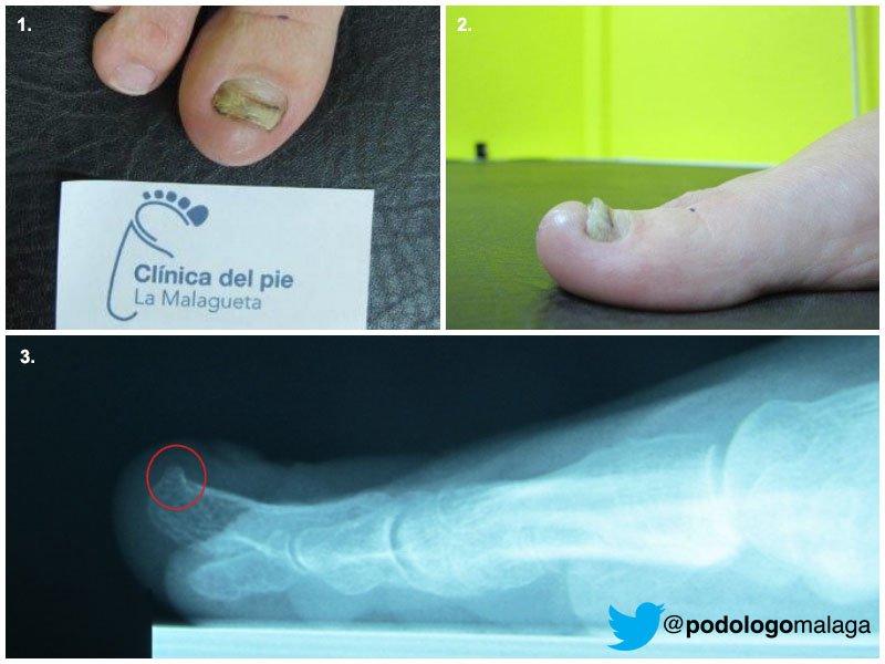 El tratamiento nistatinovoy por el ungüento de los hongos de las uñas