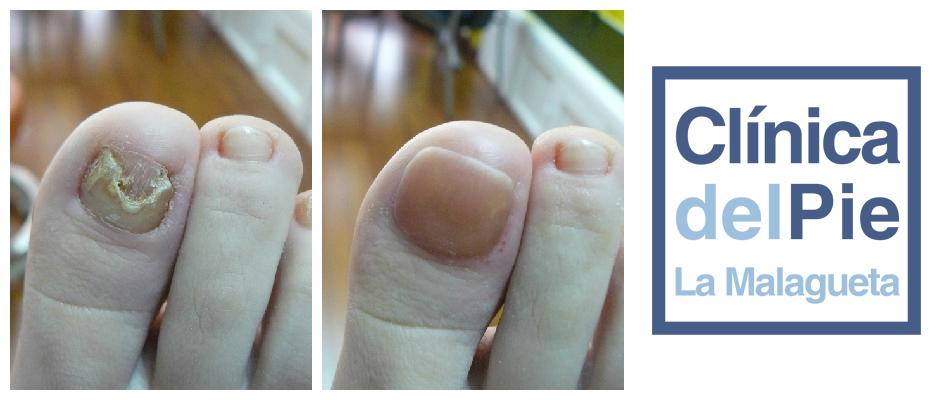 podologo reconstruccion una pie malaga