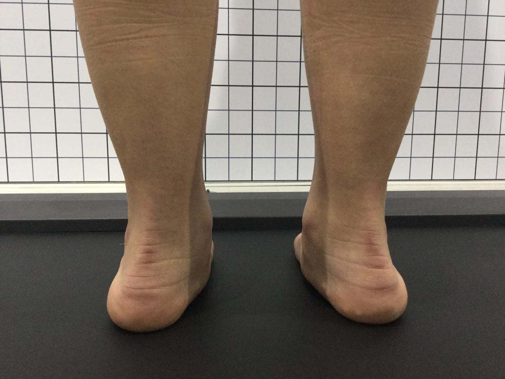 tratamiento pie plano en niños podologo infantil malaga