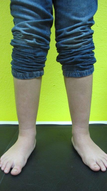 tratamiento pies planos en niños podologo infantil malaga