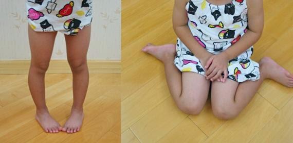 podologo infantil malaga nino puntas dentro sentado w